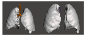 functional models from anatomical scans
