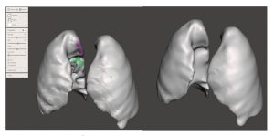Lung model local smoothing using RobustSmooth brush