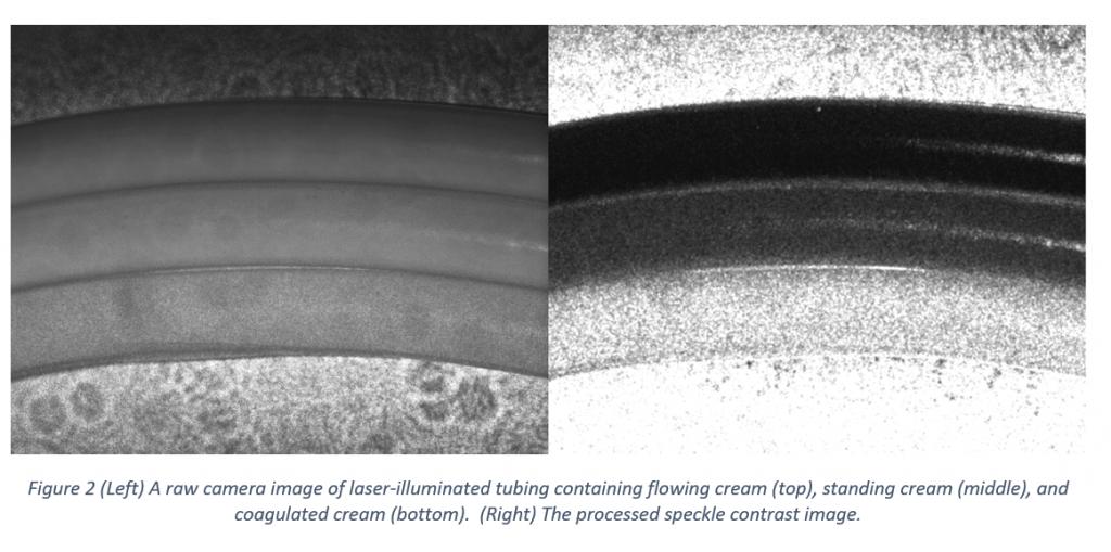 Laser Speckle Contrast Imaging