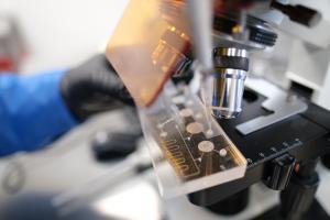 בדיקת נוזלים למחסנית מיקרו-נוזלית