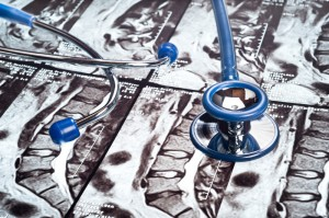 Digital Health and Spinal Care devices . A stethoscope rests on top of a MRI image of a human spine. Photo credit: canstockphoto9427580